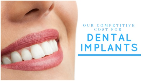 dental implant cost bajic
