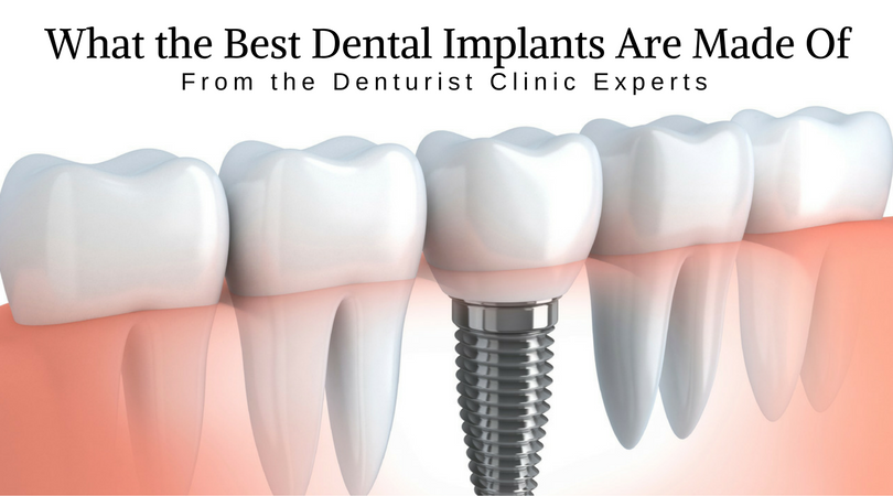 What the Best Dental Implants are Made of image