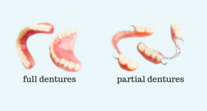 full dentures partial dentures